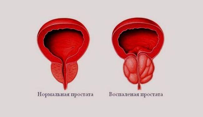 На фото показана нормальная и воспаленная простата.