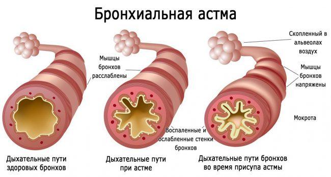 Препарат используют для профилактики обострений в течение бронхиальной астмы, применение при острых приступах нецелесообразно