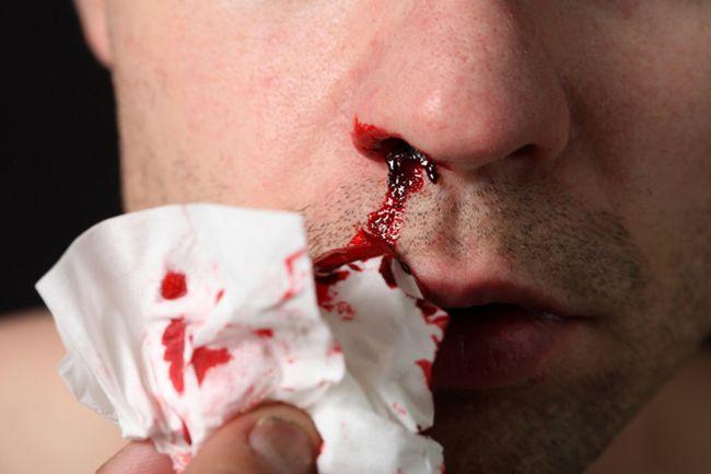 Одним из симптомов рака горла может стать кровь из носа