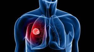 Самый частый вид рака - это именно рак легких, а чаще всего встречается он у курящих мужчин, хотя и женщины не являются исключением из правил.