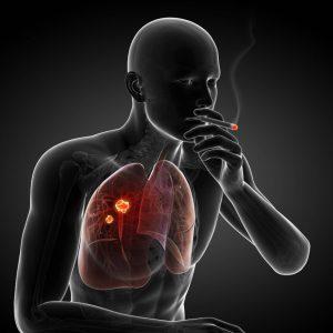 Чаще других рак легких возникает только по одной причине, которая уже столетия убивает все человечество - это курение.