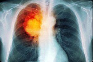 Рак легких диагностируется достаточно просто и незаметить какие-то проблемы в собственном организме или дискомфорт будет просто невозможно.