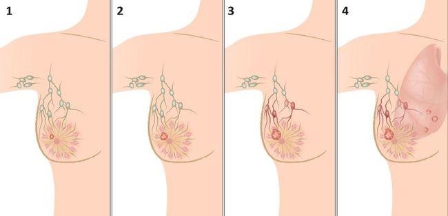 Развитие рака молочной железы