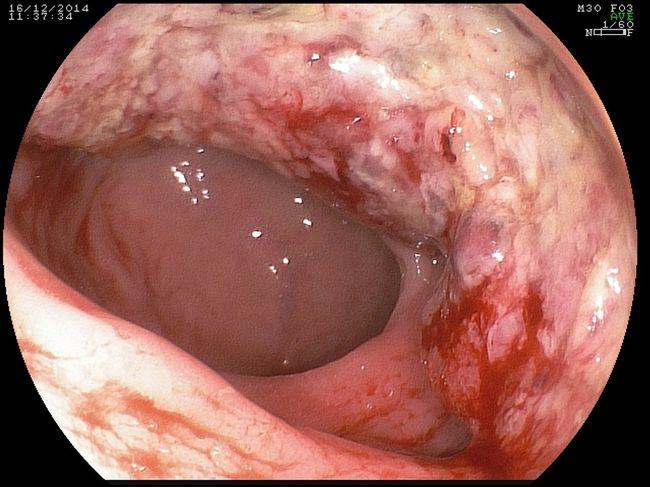 На фото рак кишечника 1-й стадии