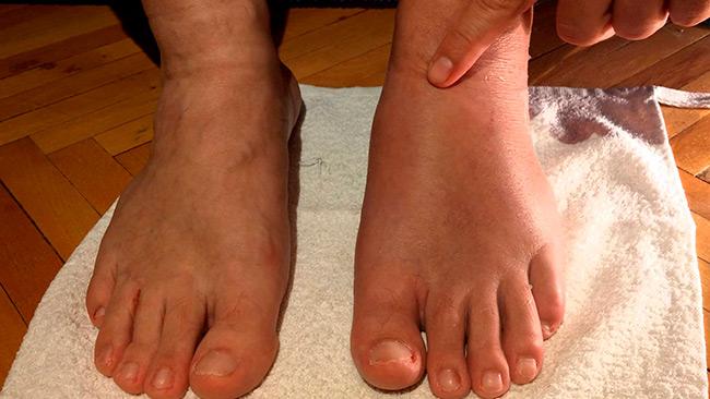 При растяжении голеностопного сустава возникает отечность, которая сопровождается болевыми ощущениями