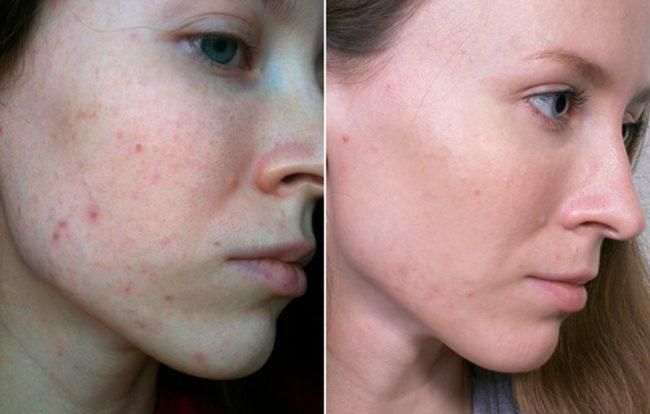 Сбалансированный состав косметического средства направлен на то, чтобы предотвратить появление новых высыпаний на коже