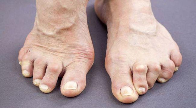 При ревматоидном артрите суставы человека поражаются с обеих сторон тела