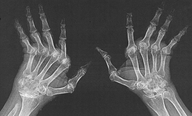 Пораженные ревматоидным артритом кистей рук