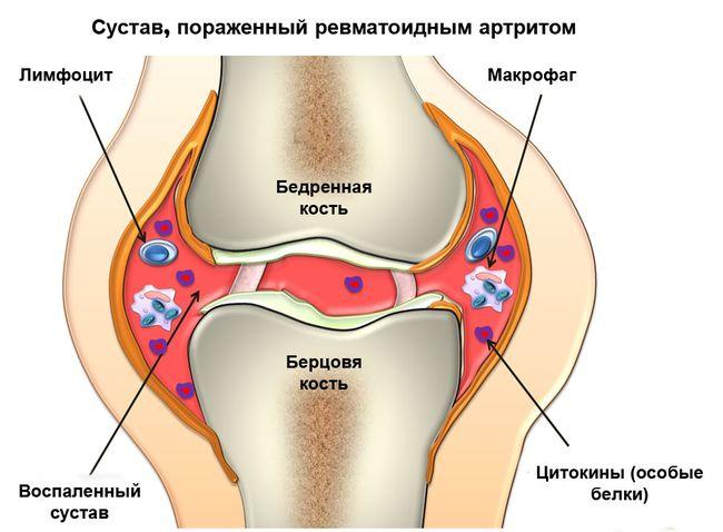 Ревматоидный артрит поражает суставы
