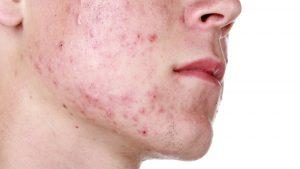 Серная мазь назначается не только при появлении обычных прыщей, но и при угревой сыпи, чесотке, лишае и многих других кожных заболеваниях, которые проявляются в виде различных высыпаний