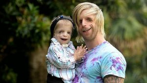 Синдром Тричера Коллинза определенно одно из самых ужасных генетических заболеваний, проявление которого вы явно можете увидеть на фотографии.