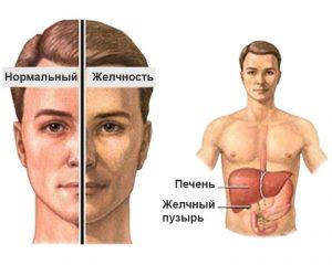 При пожелтении кожи и глазных склер не стоит медлить и визитом к врачу