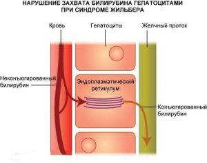 Из-за дефекта в одной из хромосом, организм банально не умеет правильно справляться с билирубином, в следствии чего начинается интоксикация организма.