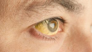 Желтые склеры глаз или желтая кожа - это самые явные признаки синдрома Жильбера.