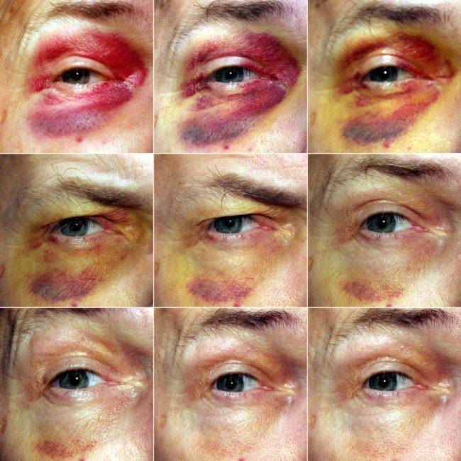 Синяки на теле без причины могут являться свидетельством нарушения работы системы кровообращения, заболеваний внутренних органов и крови. Если человек не высыпается, испытывает стресс, курит, возникают синяки под глазами (причина — сужение сосудов и недостаточное питание кожи)