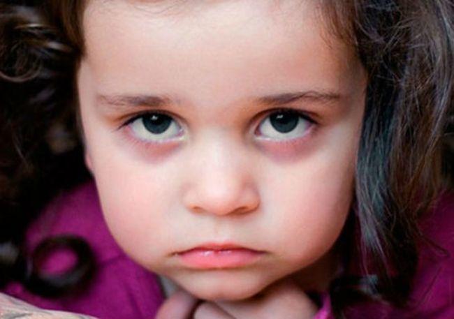 Глистная инвазия - еще одна из причин, по которой у ребенка под глазами могут наблюдаться синяки