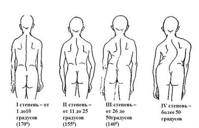 Сколиоз делится на несколько степеней, от 1-й до 4-й