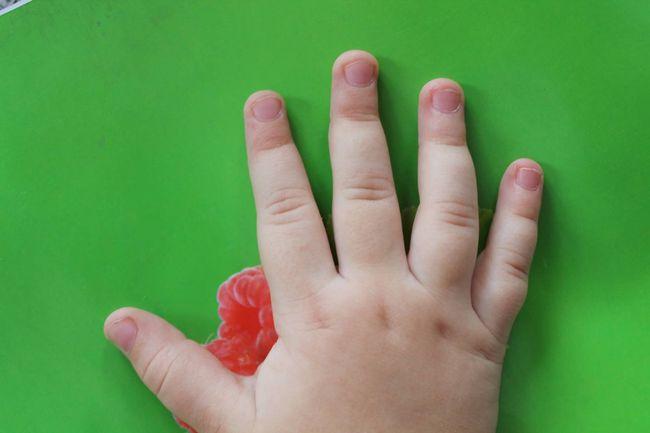 У детей ногти чаще всего слоятся из-за авитаминоза