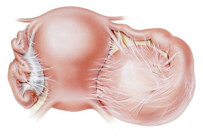 Рецепты лечения пигментных пятен на лице в