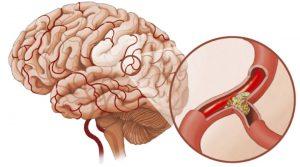 Спазм сосудов головного мозга - это крайне опасная патология, которая может привести к инсульту, если во время не начать её лечение