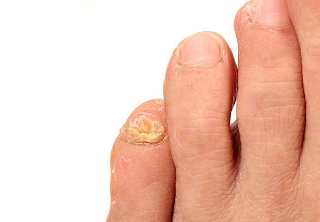 Онихомикоз – одно из распространенных трудноизлечимых и заразных заболеваний