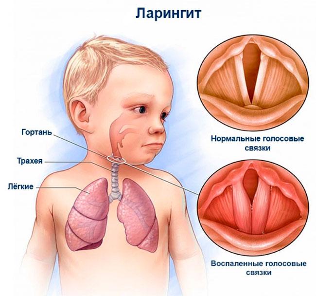 Довольно частой причиной стеноза гортани у детей является острый ларинготрахеит, который развивается у детей дошкольного возраста вследствие анатомических особенностей строения гортани