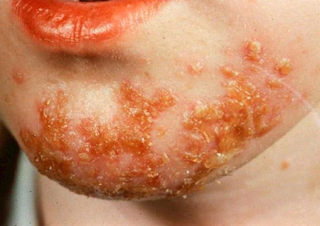 Родители должны знать - стрептодермия заразное и быстрораспространяющееся заболевание