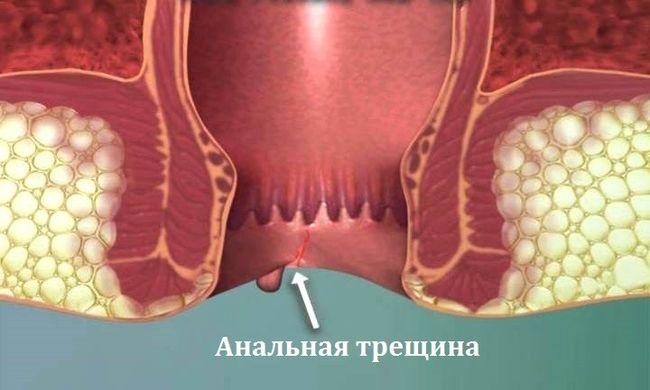 Неправильное питание может привести к анальной трещине