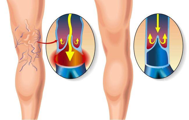 Нога с тромбофлебитом и здоровая нога