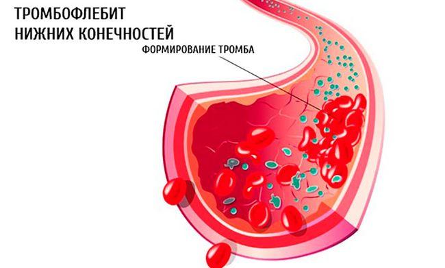 Тромбофлебит нижних конечностей - это заболевание, коорое приводит к серьёзным нарушениям вен и может потребовать врачебного вмешательства