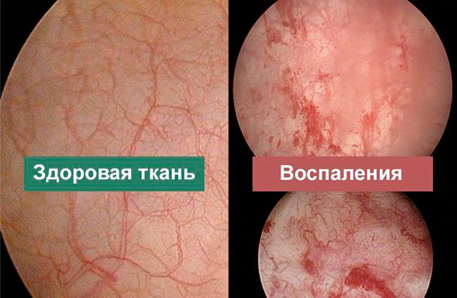 При сильном воспалении назначается курс антибактериальной терапии, которая поможет снять отечность уретры и мочеточника