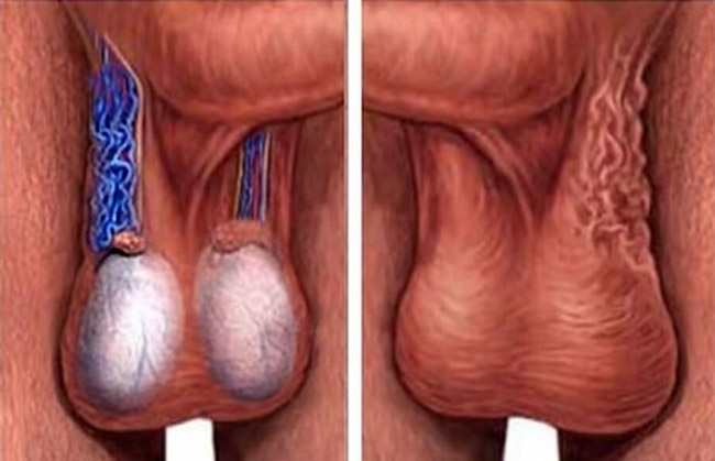 Симптомы варикоцеле у мужчин проявляются по мере расширения венозной сетки семенного канатика
