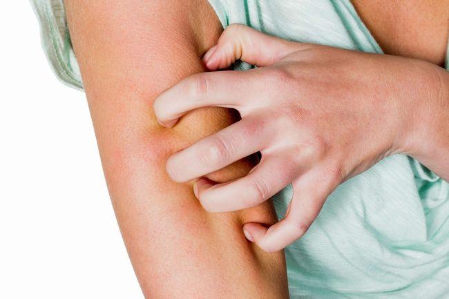 Одна из причин развития васкулита - аллергия
