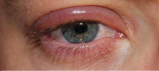 Первые признаки аллергии достаточно легко распознать, основной симптом аллергии — красные глаза, опухшие веки, слезоточивость и зуд, часто появляется насморк