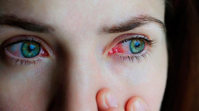 Конъюнктивит - распространенная проблема, которую еще называют «кроличьи глаза», кроме припухлости век сопровождается болью и гнойными выделениями