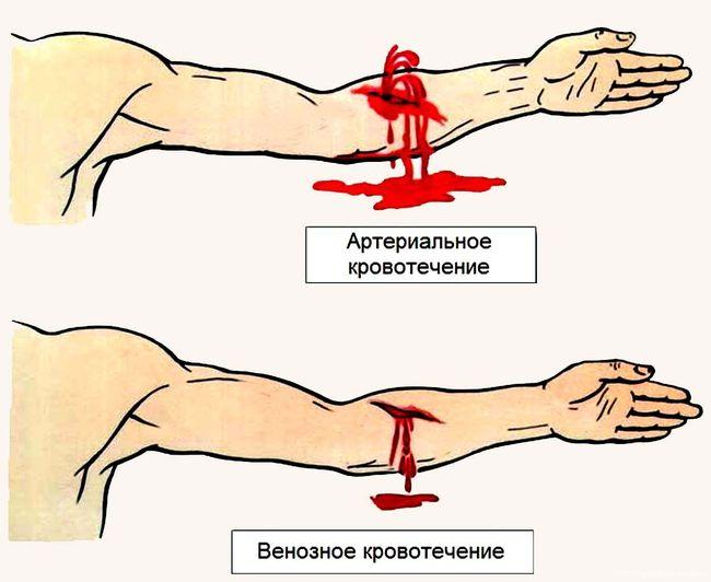 Отличие артериального кровотечения от венозного