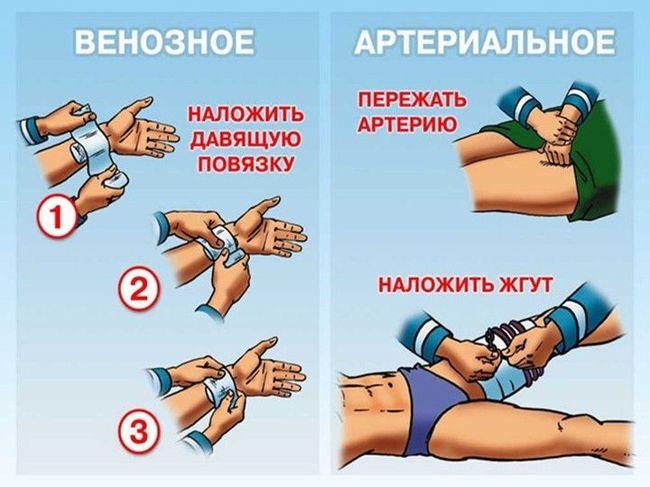 Оказание первой помощи при венозном и артериальном кровотечениях