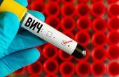 ВИЧ-инфекция у мужчин – особенности проявления и основные симптомы