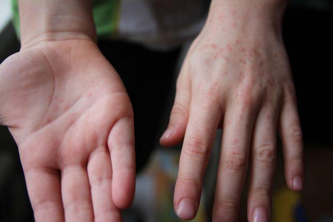 Вирус относится к семейству энтеровирусов, которых насчитывается несколько тысяч разновидностей. «Энтеро» – значит, кишечник, то есть зараза попадает в организм через рот или дыхательные пути, и размножается в кишечнике