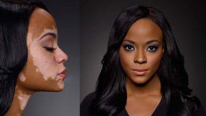 Крайне необычное заболевание Витилиго поражает не только лицо, но и другие участки кожи, лишая их естественной пигментации, что автоматически лишает кожи естественного цвета