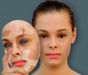 """Народные средства против Витилиго бессильны, поэтому мучить свою кожу и организм только ради того, чтобы не принимать """"химию"""" - это не самое лучшее решение"""