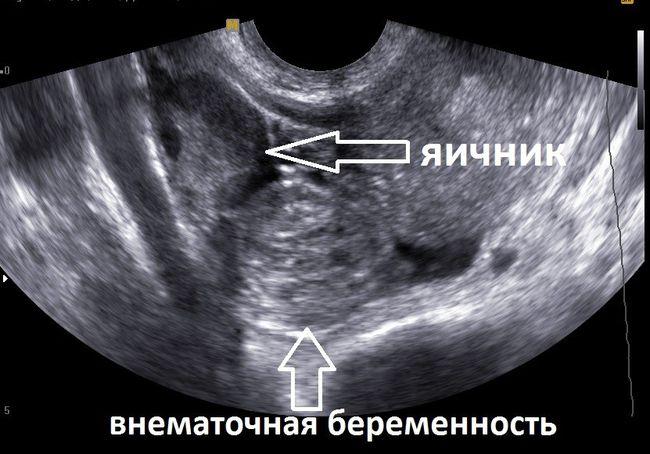 Внематочная беременность - опасное гинекологическое заболевание