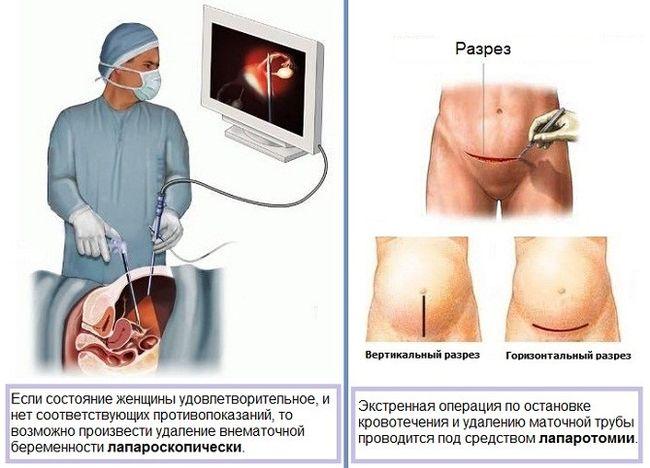 Чаще всего внематочная беременность заканчивается операцией