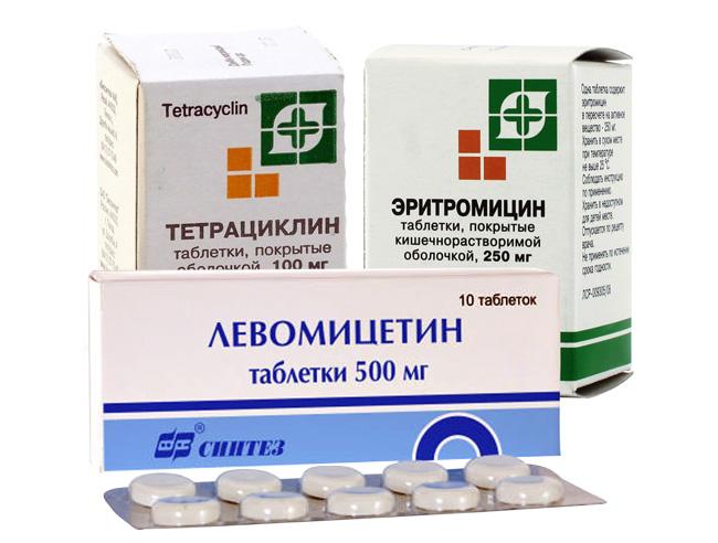 Лечение Водянки можно проводить и в домашних условиях, но обязательно под контролем врача, терапия состоит из приема антибиотиков