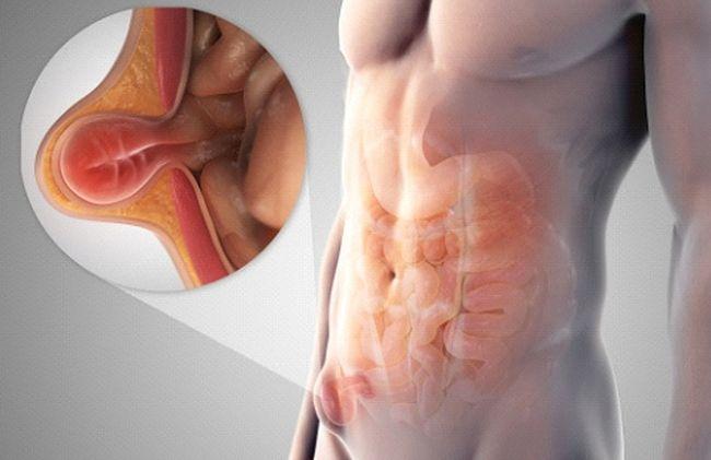 Воспаление лимфоузлов - это сигнал организма о внутренних неполадках