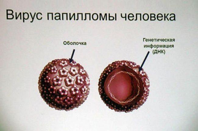Вирус папилломы человека фото симптомы и лечение