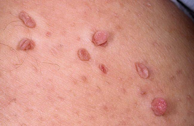 Местами проявления ВПЧ могут стать различные части тела: веки, шея, подмышки, под грудью у женщин, а также слизистая оболочка рта, носа, желудка. Несмотря на такое разнообразие, наиболее часто очагом поражения становятся именно половые органы