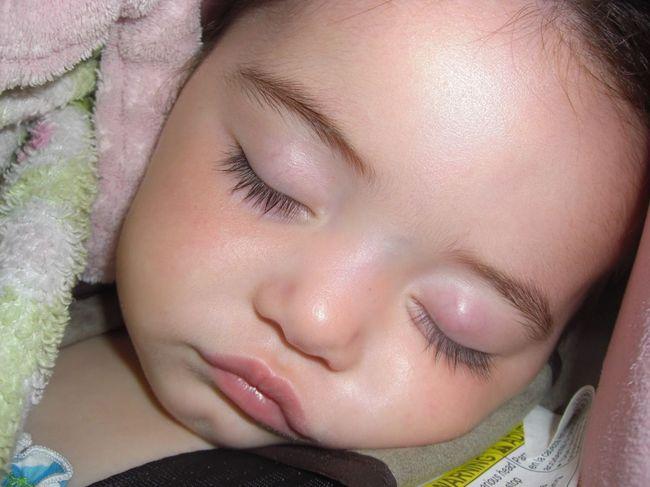 Ячмень на глазу у ребенка можно лечить теплым мешочком с солью или вареным яйцом