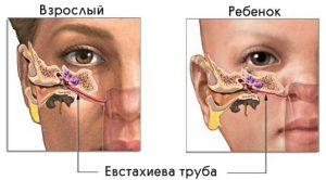 Как показано на рисунке, у ребенка евстахиева труба расположена по-другому, по этому у детей чаще возникают ушные инфекции и заболевания