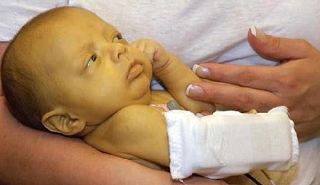 С помощью Урсосана лечат желтуху у новорожденных детей